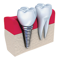Dental Bridges- Canton Dental