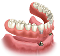 Denture Stabilization - Canton Dental
