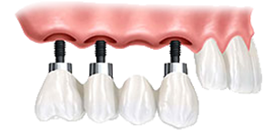 An implant-supported bridge is a great solution for replacing multiple missing teeth.