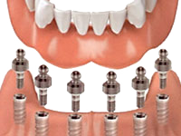 Implant-Supported Dentures - Canton Dental