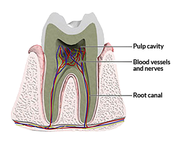 Root Canal Therapy - Canton Dental