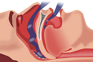 Sleep Apnea- Canton Dental