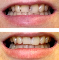 Porcelain Veneers in Canton