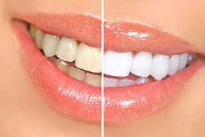 Teeth Whitening - Canton Dental